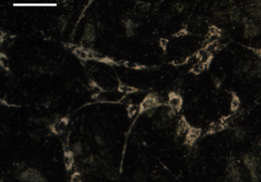Figure 1. Dark field image of mesenchymal stem cells (MSCs) labeled with gold nanoparticles. Scale bar = 100 µm.