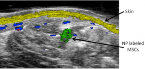 Figure 2. Spectroscopic photoacoustic imaging of nanoparticle labeled MSCs (green) injected into the lateral gastrocnemius. Skin (yellow) and oxygenated (red) and deoxygenated (blue) hemoglobin are also shown.