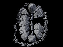 CT scan of multiplacophoran